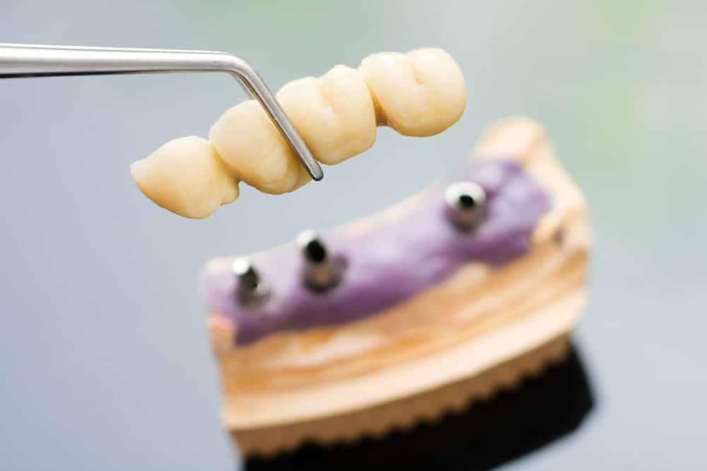 Dental Bridge Image