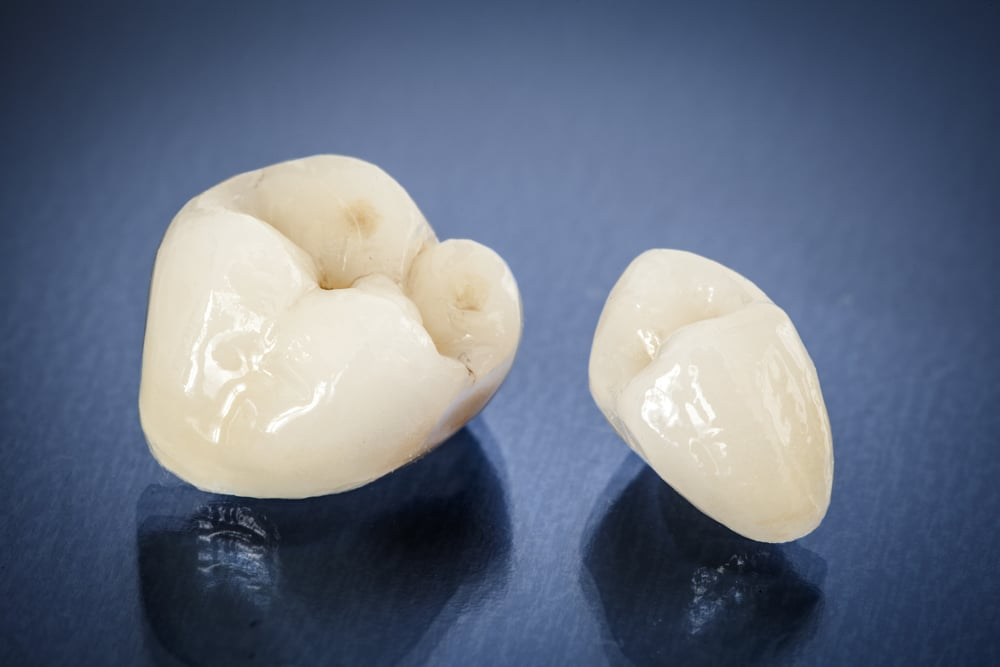 Still Photograph of 2 Dental Crowns