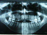 Picture of dental x-ray