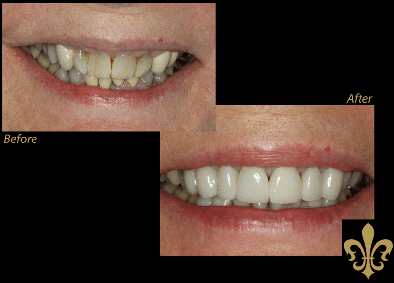Before and After Photos of Veneers