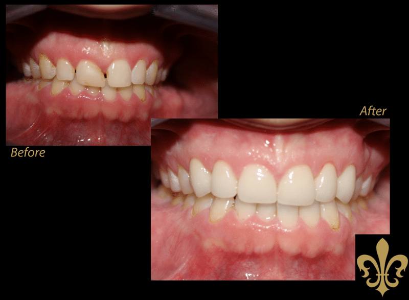 before-after-4