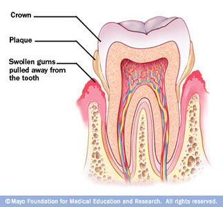 Image of Periodontitis