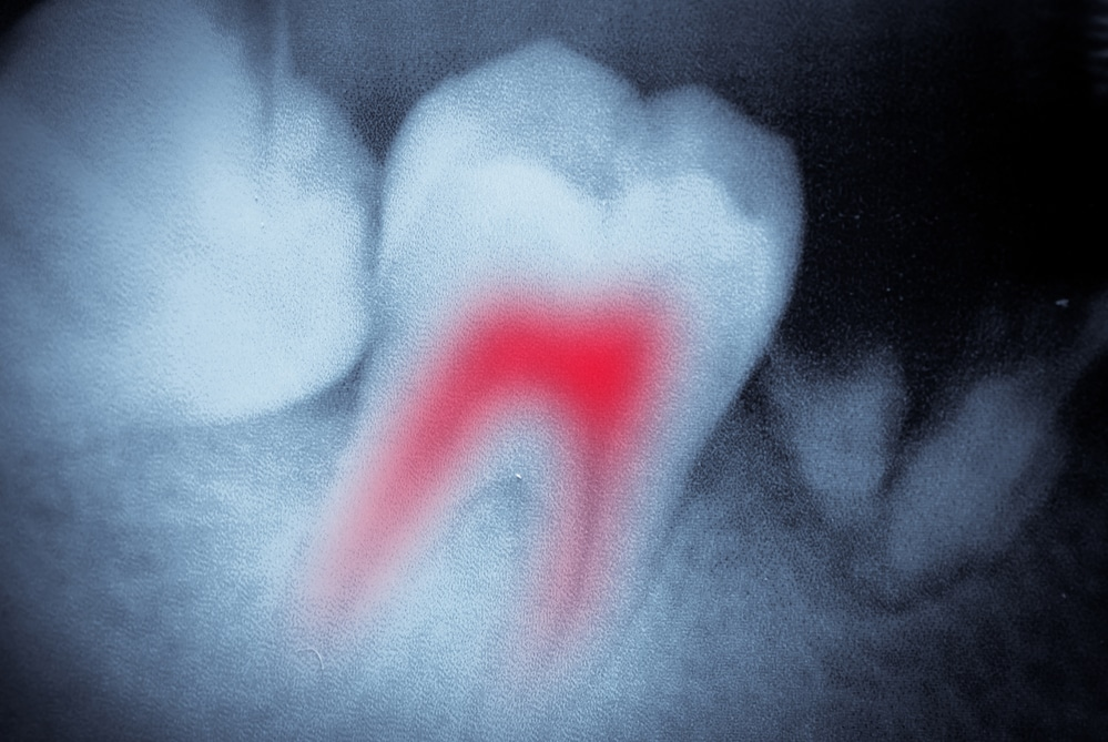 Dental X Ray for Root Canal