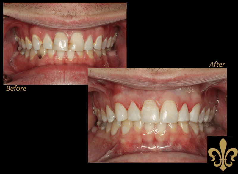 before-after-15